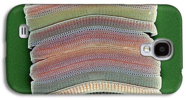 Calcareous Phytoplankton Photographs Galaxy S4 Cases - Colonial Diatom, Sem Galaxy S4 Case by Steve Gschmeissner