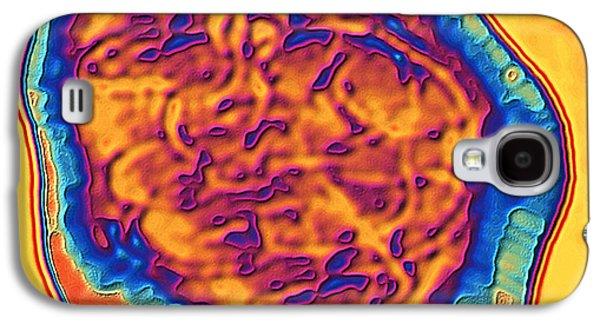 Coloured Tem Of The Measles Virus (morbilli-virus) Galaxy S4 Case by Pasieka