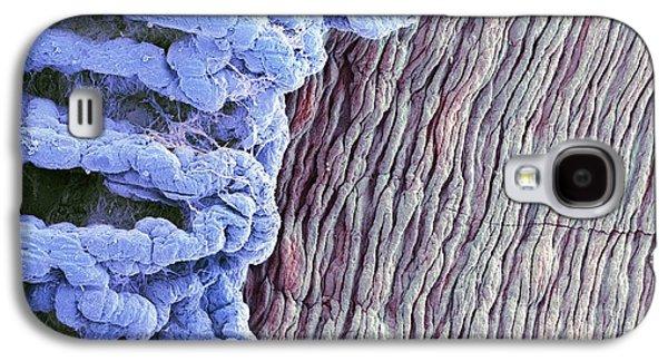 Physiology Galaxy S4 Cases - Eye Anatomy, Sem Galaxy S4 Case by Steve Gschmeissner