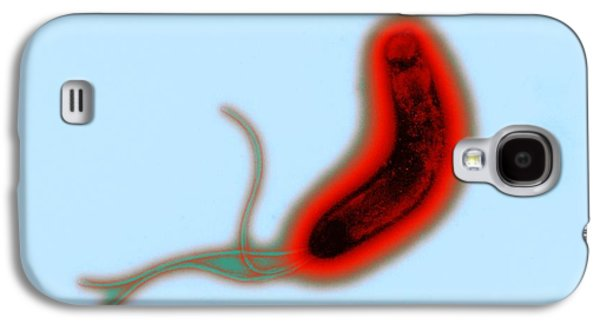 Microbiological Galaxy S4 Cases - Helicobacter Pylori Bacteria, Tem Galaxy S4 Case by Dr Klaus Boller