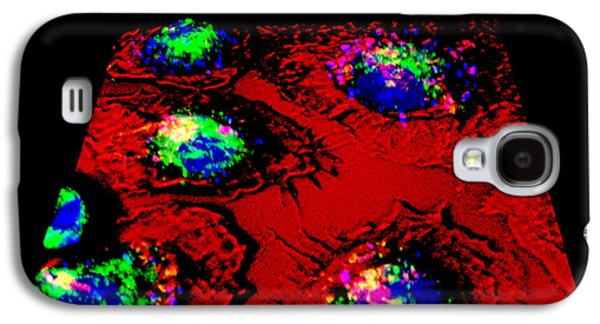 Engulfing Galaxy S4 Cases - Macrophages And Tuberculosis Vaccine Galaxy S4 Case by