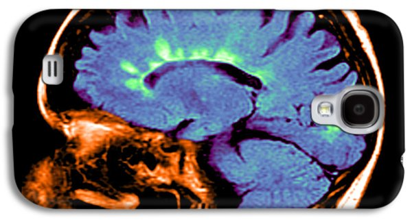 Abnormal Galaxy S4 Cases - Mri Of Multiple Sclerosis Galaxy S4 Case by Medical Body Scans