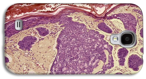 False-colour Galaxy S4 Cases - Skin Cancer, Light Micrograph Galaxy S4 Case by Steve Gschmeissner