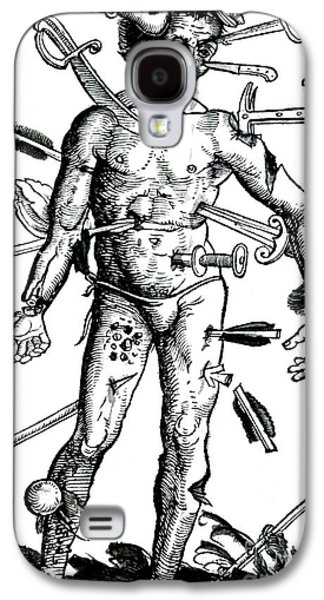 Replacing Galaxy S4 Cases - Wound Man 1517 Galaxy S4 Case by Science Source