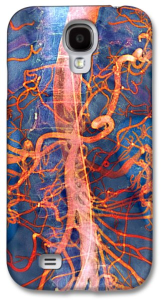 False-colour Galaxy S4 Cases - Abdominal Arteries, X-ray Galaxy S4 Case by Cnri