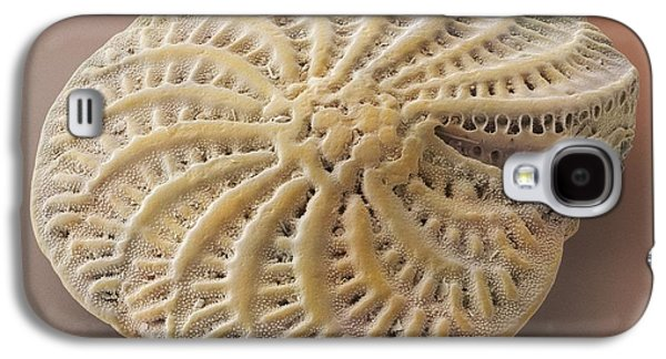 Plankton Galaxy S4 Cases - Foraminiferan Test Shell Sem Galaxy S4 Case by Power and Syred