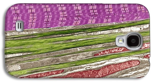 Tem Galaxy S4 Cases - Skeletal Muscle And Tendon, Tem Galaxy S4 Case by Steve Gschmeissner