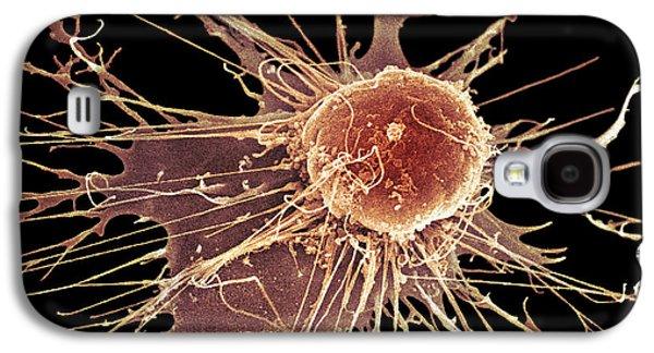 False-colour Galaxy S4 Cases - Stem Cell, Sem Galaxy S4 Case by