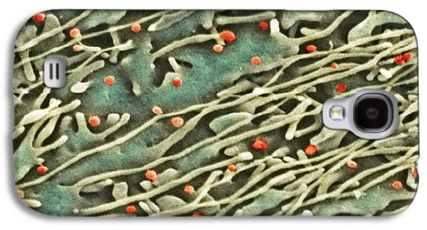 Microbiological Galaxy S4 Cases - Hepatitis C Viruses, Tem Galaxy S4 Case by Thomas Deerinck, Ncmir
