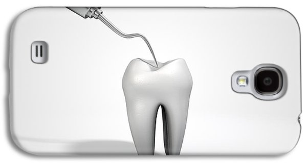 Canines Digital Art Galaxy S4 Cases - Dentists Probe Hook And Tooth Galaxy S4 Case by Allan Swart