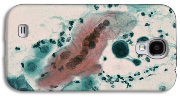 Microbiological Galaxy S4 Cases - Herpes Simplex Infection Galaxy S4 Case by Dr. E. Walker