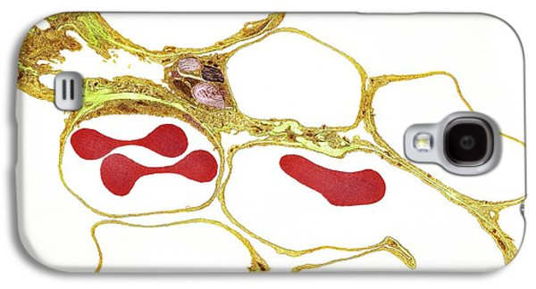 Tem Galaxy S4 Cases - Lung Alveoli And Red Blood Cells, Tem Galaxy S4 Case by Thomas Deerinck, Ncmir