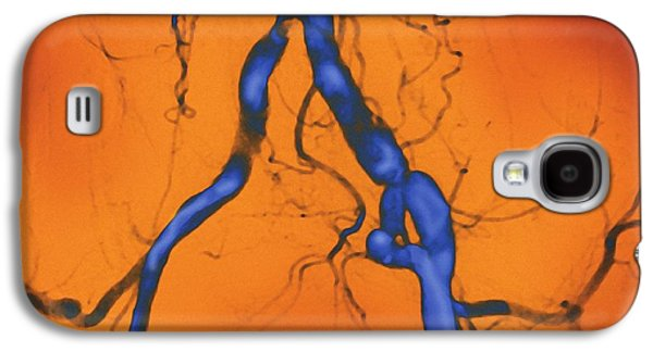False-colour Galaxy S4 Cases - Narrowed Abdominal Arteries, Angiogram Galaxy S4 Case by Miriam Maslo