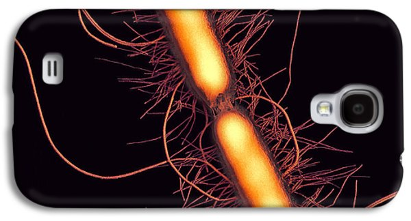 Microbiological Galaxy S4 Cases - Proteus Vulgaris Bacteria, Sem Galaxy S4 Case by Thomas Deerinck, Ncmir