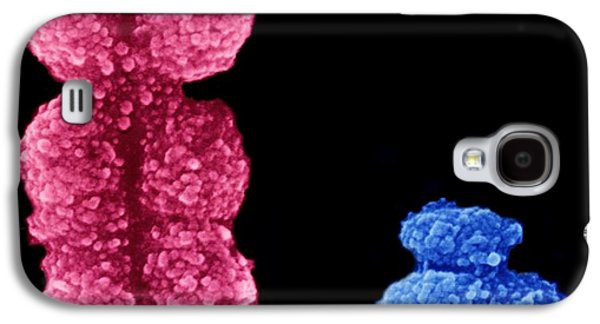 X And Y Chromosomes Galaxy S4 Case by