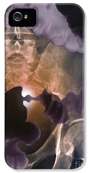 Colon iPhone 5 Cases - Colon Cancer, Barium X-ray iPhone 5 Case by Zephyr