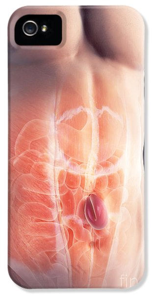 Ventral Hernia IPhone 5 / 5s Case by Science Picture Co