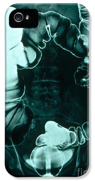 Colon Examination, Barium Enema IPhone 5 / 5s Case by Scott Camazine