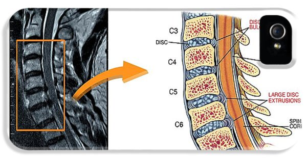 Slipped Discs In The Cervical Spine IPhone 5 / 5s Case by John T. Alesi