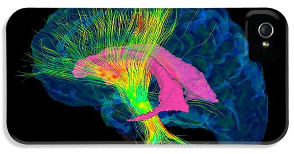 Diffusion iPhone 5 Cases - Brain Fibres, Dti Mri Scan iPhone 5 Case by Sherbrooke Connectivity Imaging Lab