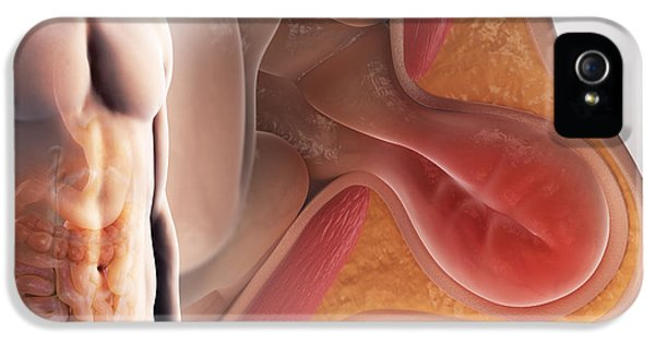 Inguinal Hernia IPhone 5 / 5s Case by Science Picture Co