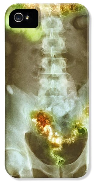 Ulcerative Colitis iPhone 5 Cases - Ulcerative Colitis, X-ray iPhone 5 Case by Spl