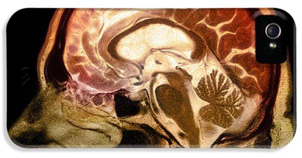 Dementia iPhone 5 Cases - Alcoholic Dementia, Mri Scan iPhone 5 Case by Du Cane Medical Imaging Ltd.