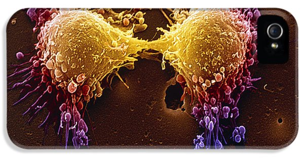Condition iPhone 5 Cases - Cancer Cell Division iPhone 5 Case by SPL and Photo Researchers