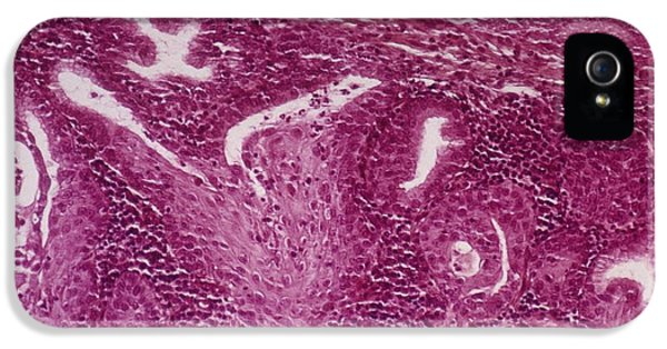Non-cancerous iPhone 5 Cases - Cervical Squamous Metaplasia iPhone 5 Case by Dr. F. Coupez, Cnri