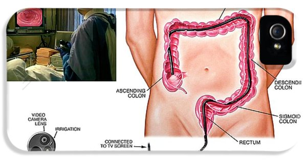 Colonoscopy Procedure IPhone 5 / 5s Case by John T. Alesi
