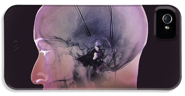Deep Brain Stimulation, X-ray IPhone 5 / 5s Case by Zephyr