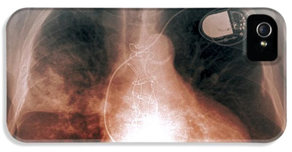Diseased iPhone 5 Cases - Heart And Lung Disease, X-ray iPhone 5 Case by Zephyr