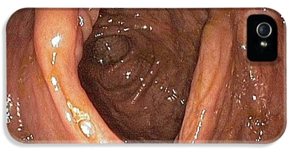 Colonoscopy iPhone 5 Cases - Ileocaecal Valve, Endoscopic View iPhone 5 Case by Gastrolab