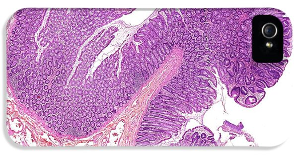 Large Bowel Polyps IPhone 5 / 5s Case by Microscape