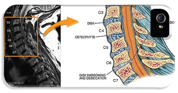 Protruding Disc In The Cervical Spine IPhone 5 / 5s Case by John T. Alesi