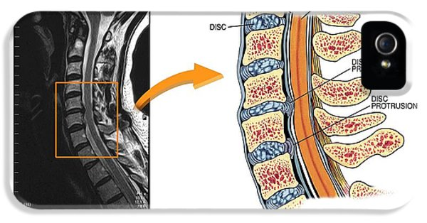 Protruding Discs In The Cervical Spine IPhone 5 / 5s Case by John T. Alesi