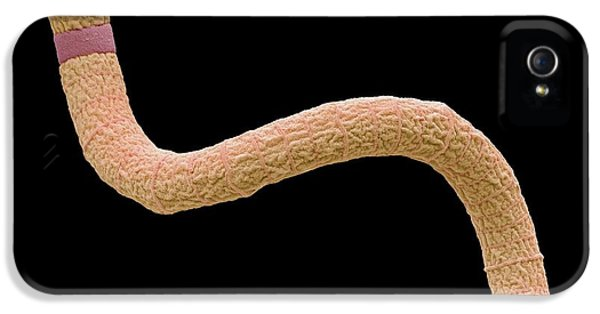 Spirulina Cyanobacteria IPhone 5 / 5s Case by Steve Gschmeissner