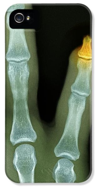 Amputated Fingertip, X-ray IPhone 5 / 5s Case by Du Cane Medical Imaging Ltd