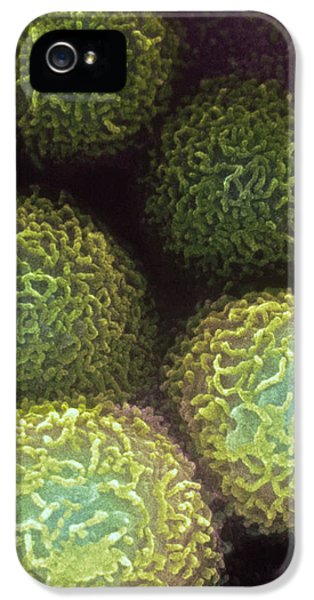Colon iPhone 5 Cases - Colon Cancer Cells iPhone 5 Case by Dr Gopal Murti