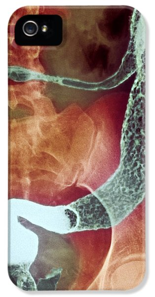 Inflamed iPhone 5 Cases - Inflamed Colon And Rectum, X-ray iPhone 5 Case by Cnri