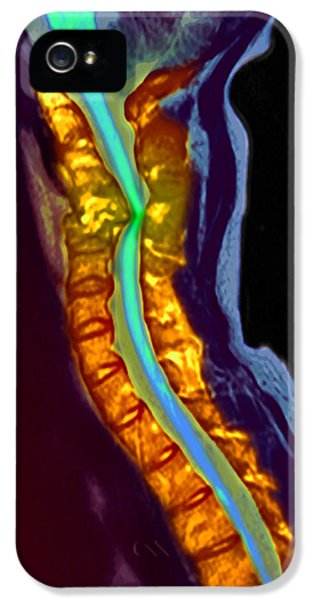 Inflamed iPhone 5 Cases - Inflamed Spinal Discs, Mri Scan iPhone 5 Case by Du Cane Medical Imaging Ltd