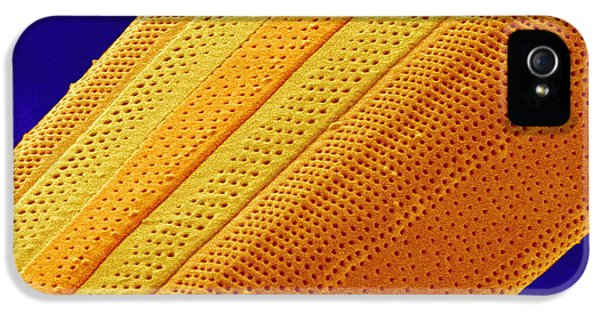 Phytoplankton iPhone 5 Cases - Marine Diatom Alga, Sem iPhone 5 Case by Susumu Nishinaga