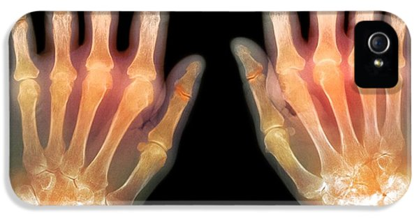 Coloured X-ray iPhone 5 Cases - rheumatoid Arthritis Of The Hands, X-ray iPhone 5 Case by Du Cane Medical Imaging Ltd