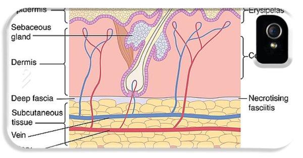 Inflammatory Disease iPhone 5 Cases - Skin Disorders, Artwork iPhone 5 Case by Peter Gardiner