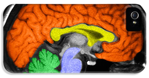Diagnostic iPhone 5 Cases - Human Brain iPhone 5 Case by Ted Kinsman