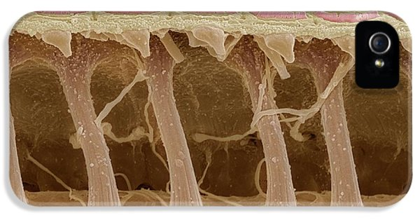 Scanning Electron Microscope iPhone 5 Cases - Inner Ear Hair Cells, Sem iPhone 5 Case by Steve Gschmeissner