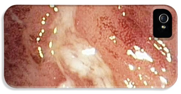 Inflammatory Disease iPhone 5 Cases - Crohns Disease iPhone 5 Case by Gastrolab
