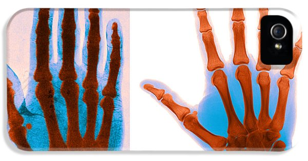 Early And Modern Hand X-rays IPhone 5 / 5s Case by Medical Body Scans