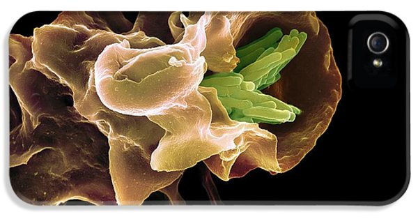 Scanning Electron Microscope iPhone 5 Cases - Macrophage Engulfing Tb Bacteria, Sem iPhone 5 Case by