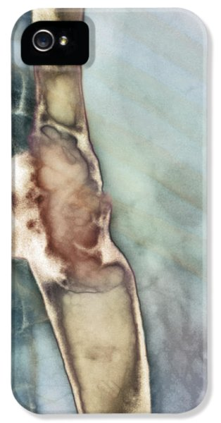 Malignancy iPhone 5 Cases - Oesophagus Cancer, X-ray iPhone 5 Case by Cnri